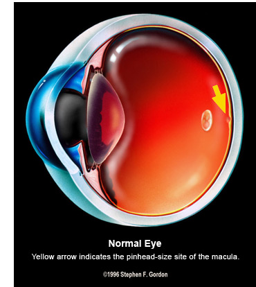 macular-degeneration-normal-eye